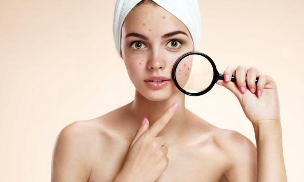 women-pimples-600x359 Эмэгтэй хүн бүр мэдэх ёстой өндгөвчний тухай сонирхолтой 5 баримт