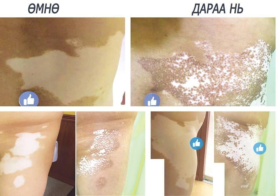 0fb9aa_51604179_2070251066384940_6678824464840392704_n_x974 Арьс цайх болон арьсны хүнд өвчнүүдийг Монголд бүрэн эмчилж байна