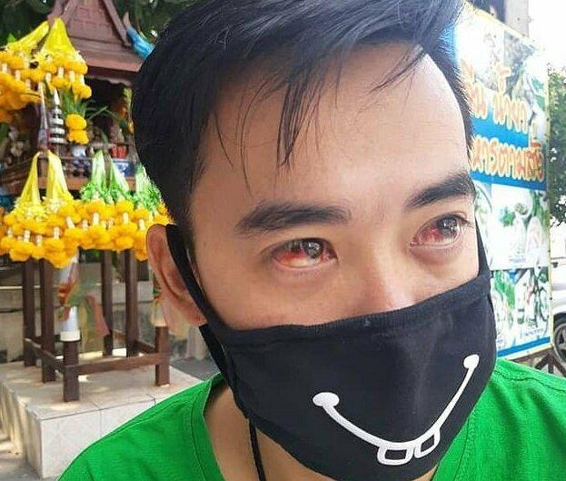 3-3 Бангкокийн иргэд утаанаас болж цусаар ханиаж байна