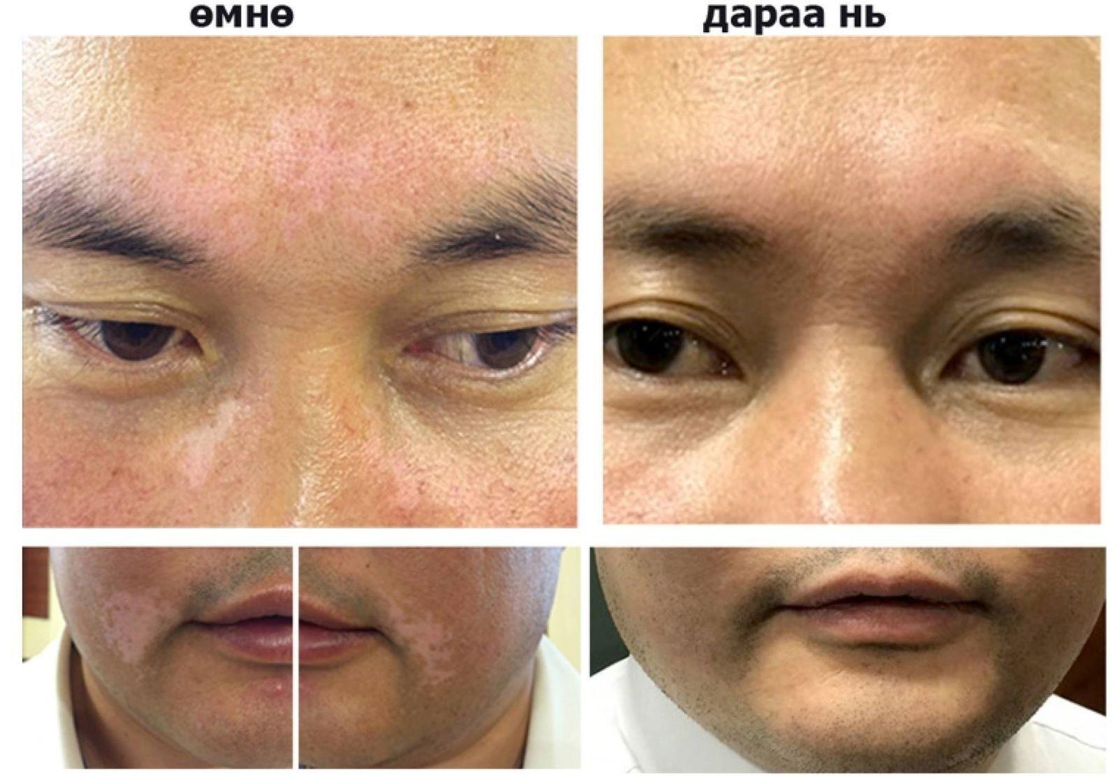 74e162_52634661_406130773529768_8424398555183054848_n_x974 Арьс цайх болон арьсны хүнд өвчнүүдийг Монголд бүрэн эмчилж байна
