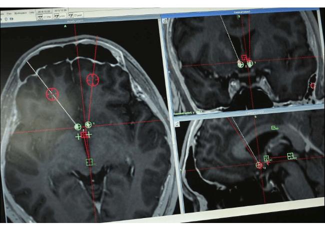 brain-scans-of-dbs-patient Хятадууд хар тамхины донтолтод анх удаа тархины имплант ашиглав