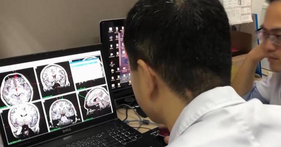 doctors-analyze-brain-scans Хятадууд хар тамхины донтолтод анх удаа тархины имплант ашиглав