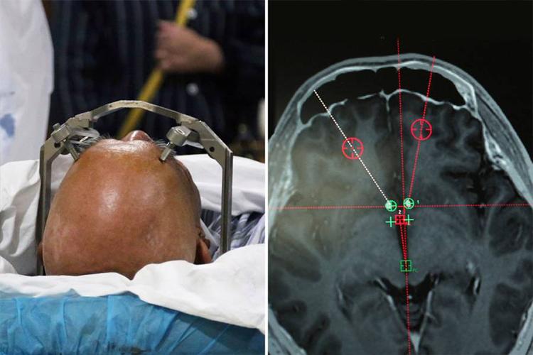 emplant Хятадууд хар тамхины донтолтод анх удаа тархины имплант ашиглав